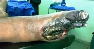 Gangrenous foot